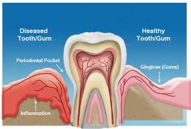Gum Disease Dentist Chandler Gilbert AZ 85225